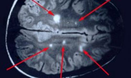 La sclérose en plaques est la maladie de Lyme: Anatomie d'une dissimulation